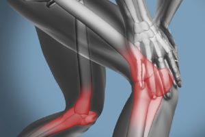 The Hidden Cause Behind Your Musculoskeletal Injuries